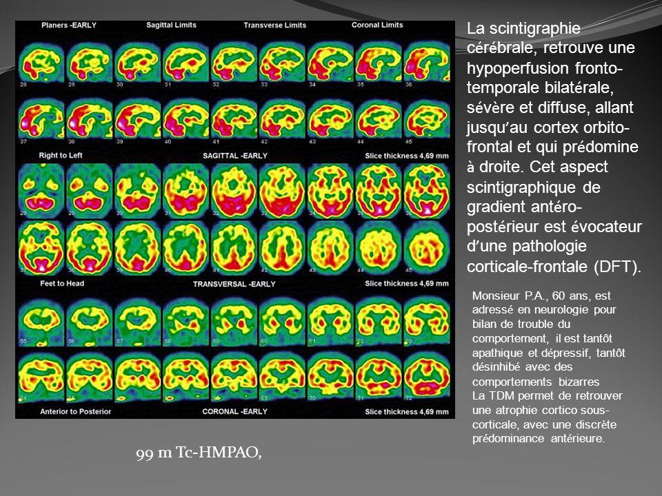 La scintigraphie cérébrale, retrouve une hypoperfusion fronto-temporale bilatérale, sévère et diffuse, allant jusqu'au cortex orbito-frontal et qui prédomine à droite. Cet aspect scintigraphique de gradient antéro-postérieur est évocateur d'une pathologie corticale-frontale (DFT).