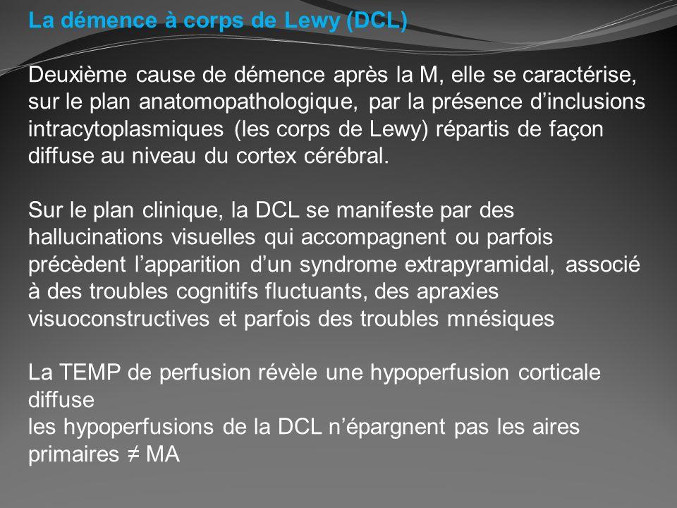La démence à corps de Lewy (DCL)