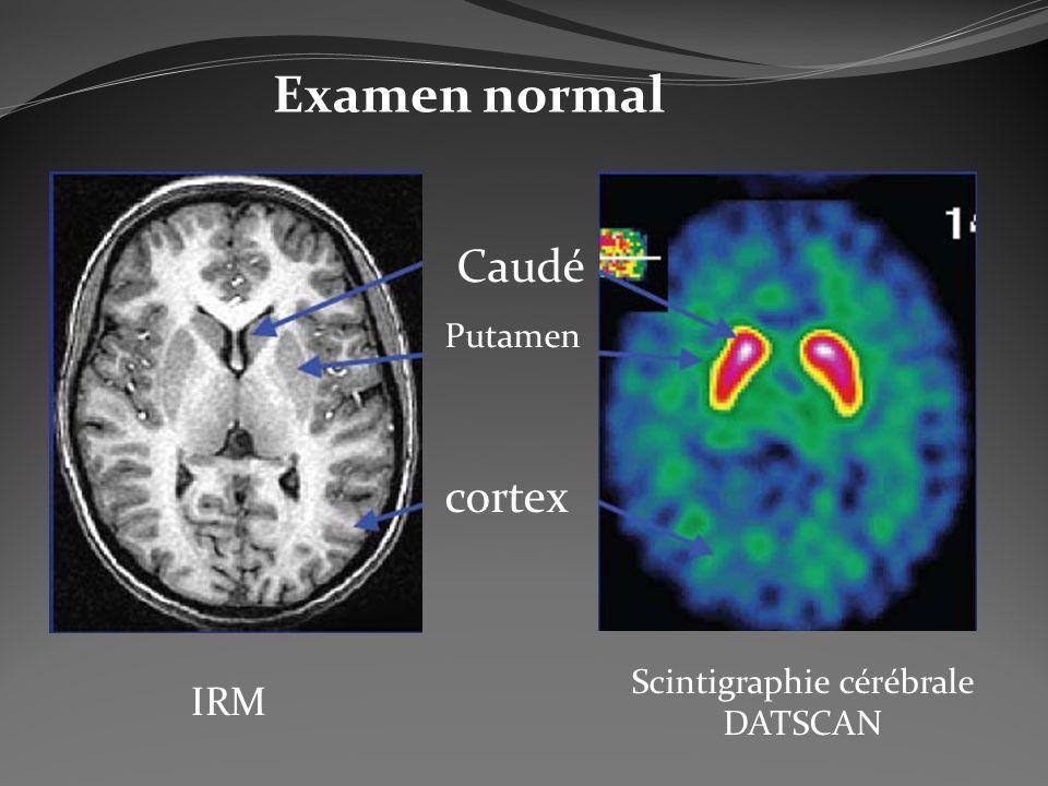 Scintigraphie cérébrale