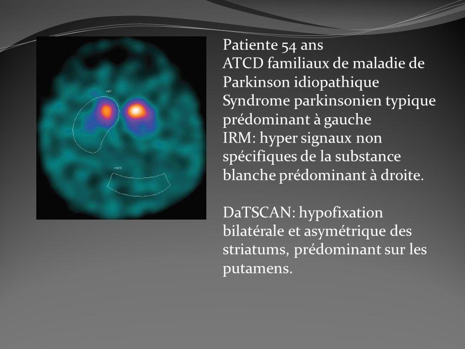 Patiente 54 ans ATCD familiaux de maladie de. Parkinson idiopathique Syndrome parkinsonien typique.
