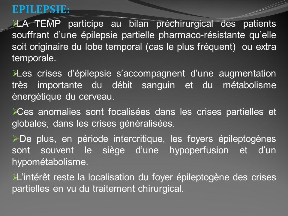EPILEPSIE: