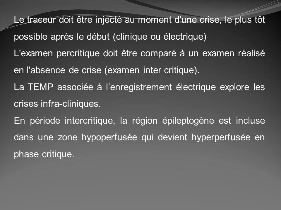 Le traceur doit être injecté au moment d une crise, le plus tôt possible après le début (clinique ou électrique)