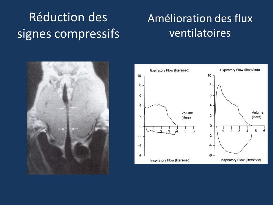 Amélioration des flux ventilatoires