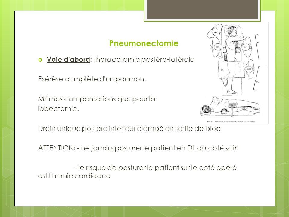 Pneumonectomie Voie d abord: thoracotomie postéro-latérale
