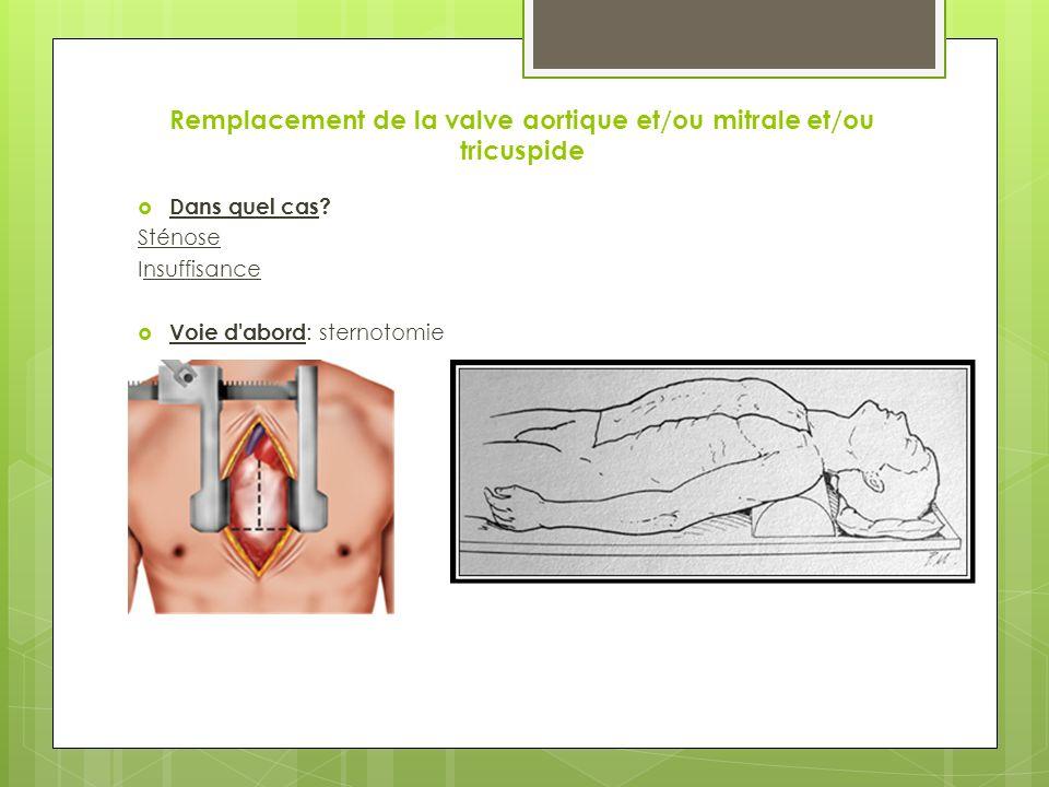 Remplacement de la valve aortique et/ou mitrale et/ou tricuspide