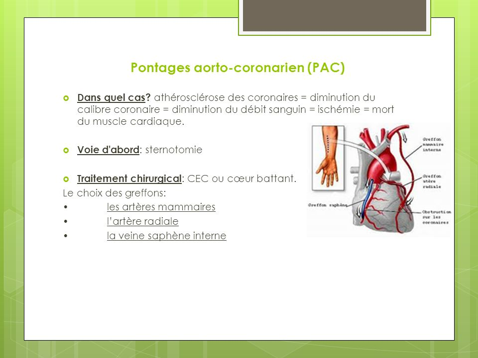 Pontages aorto-coronarien (PAC)