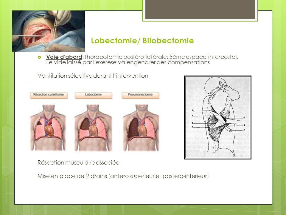 Lobectomie/ Bilobectomie