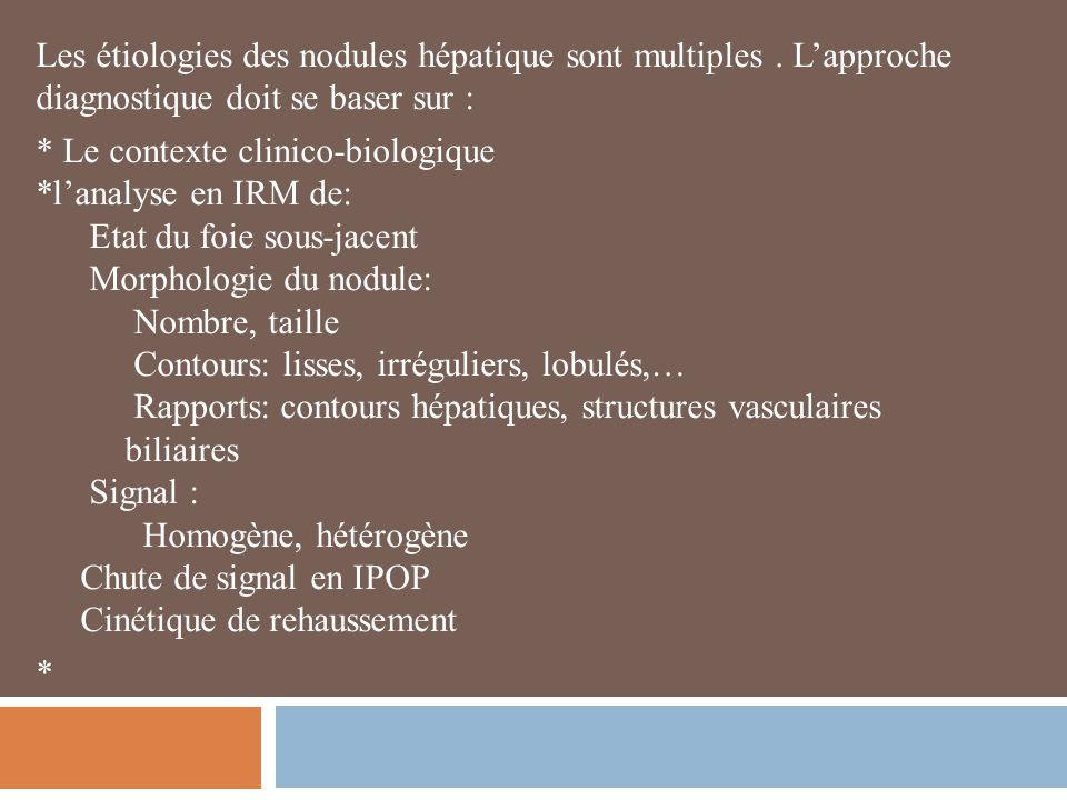 Les étiologies des nodules hépatique sont multiples