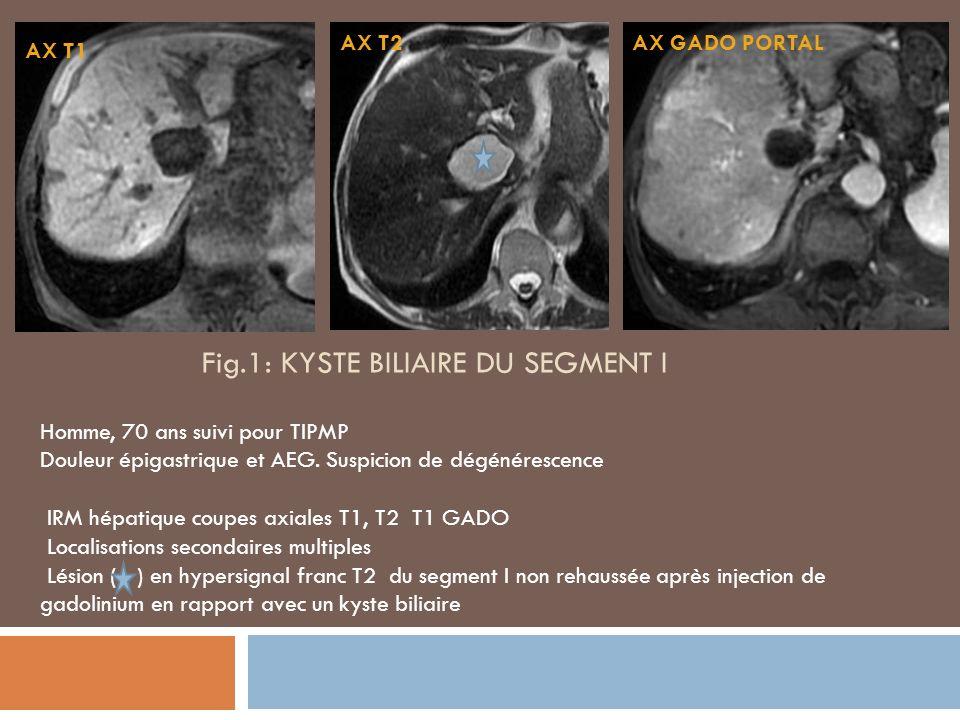 Fig.1: KYSTE BILIAIRE DU SEGMENT i