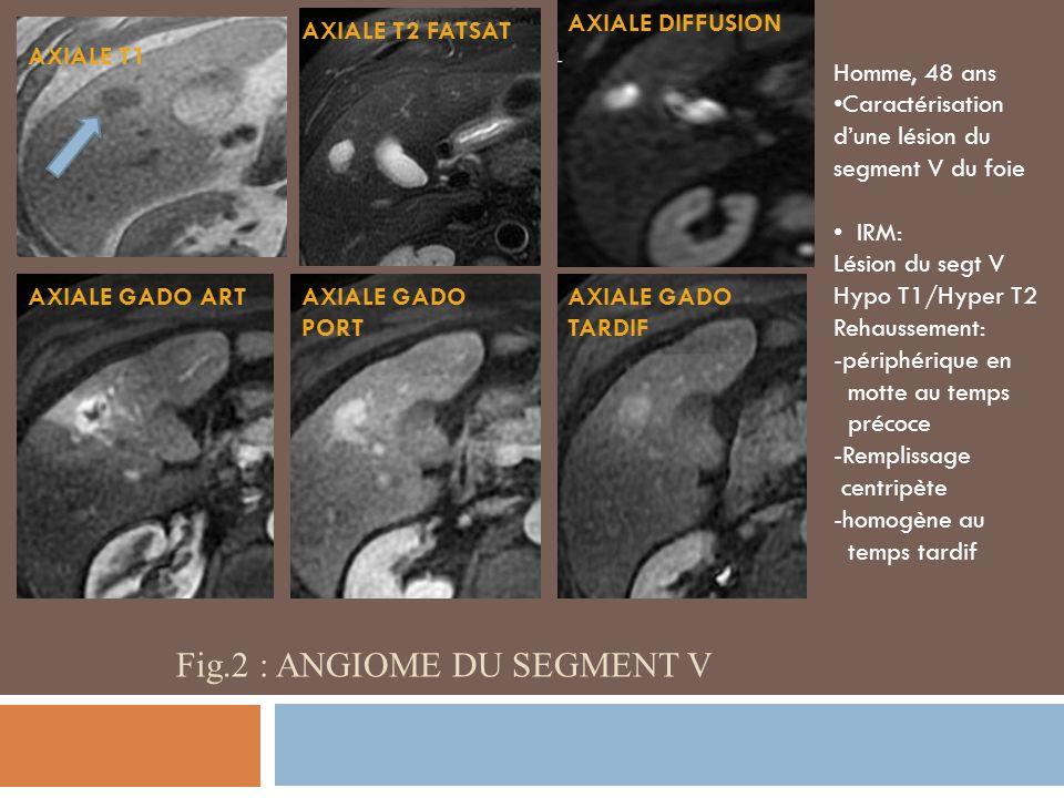 Fig.2 : angiome DU SEGMENT v