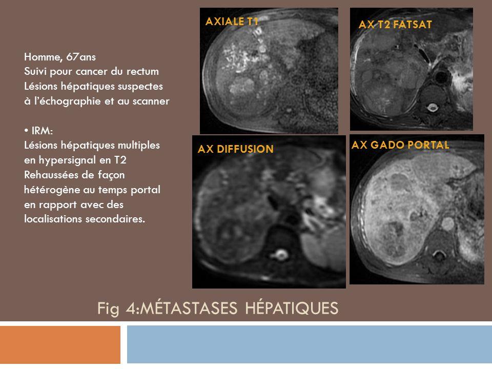 Fig 4:Métastases hépatiques