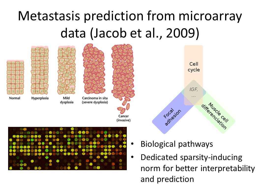 Metastasis prediction from microarray data (Jacob et al., 2009)