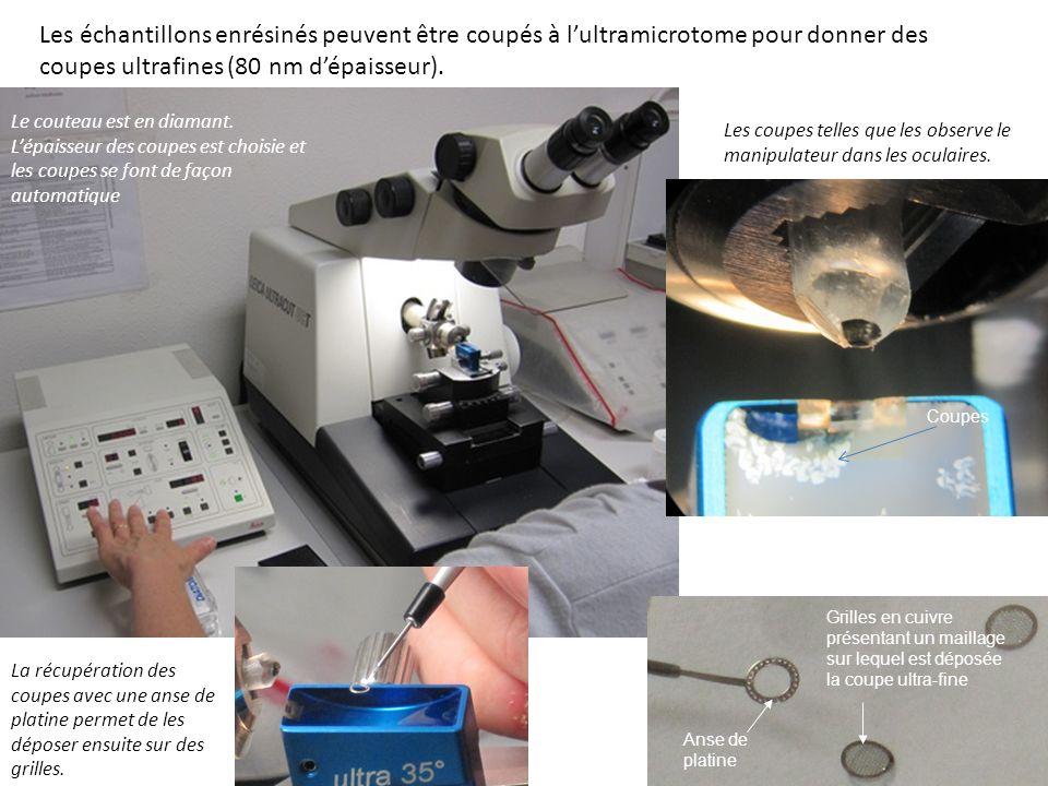 Les échantillons enrésinés peuvent être coupés à l'ultramicrotome pour donner des coupes ultrafines (80 nm d'épaisseur).