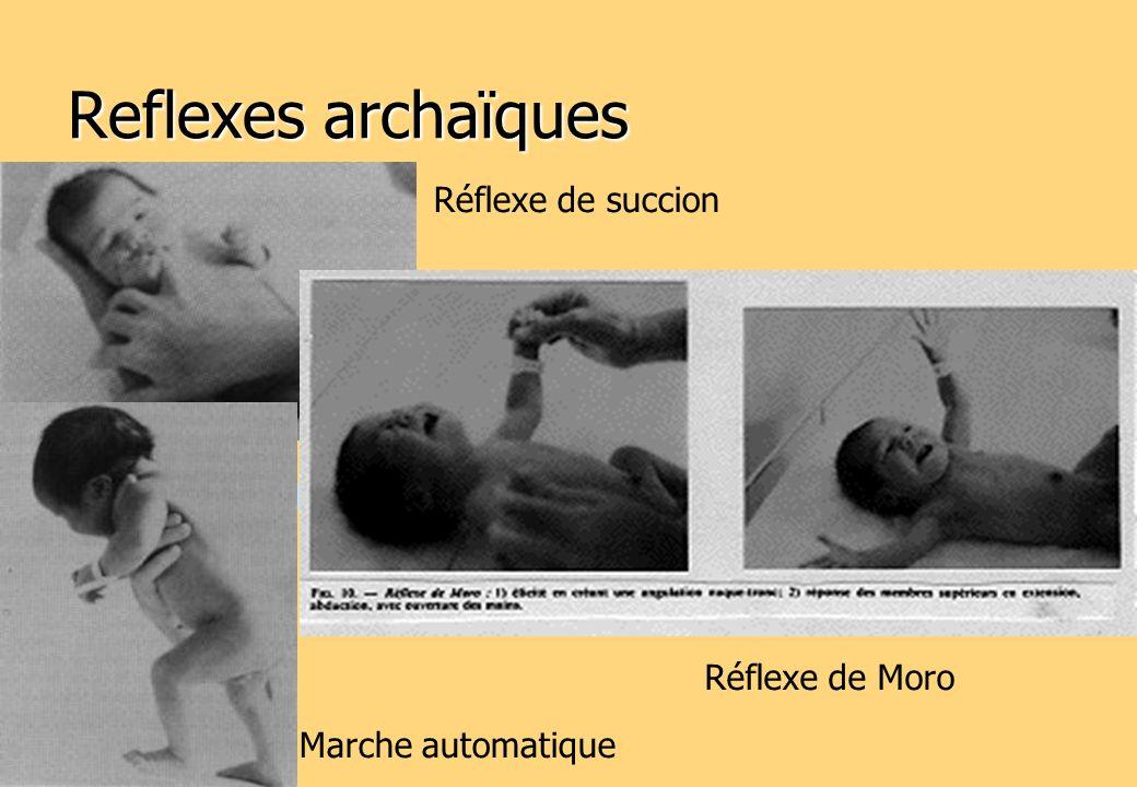 Reflexes archaïques Réflexe de succion Réflexe de Moro