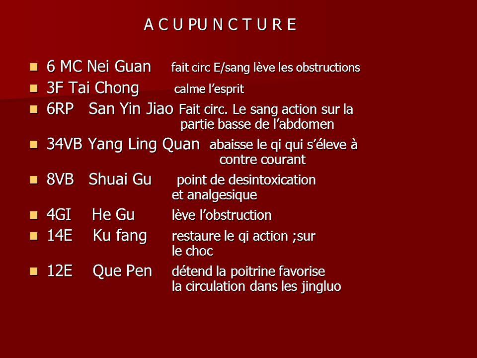 A C U PU N C T U R E 6 MC Nei Guan fait circ E/sang lève les obstructions. 3F Tai Chong calme l'esprit.
