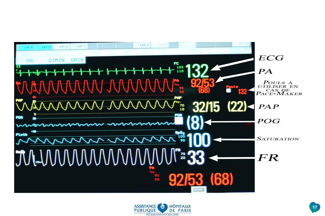 Avec ces repères le nouveau soignant pourra interpréter au mieux les différentes courbes enregistrant l'activité du cœur et ses réactions en post-op et réagir à la moindre anomalie en avertissant les médecins
