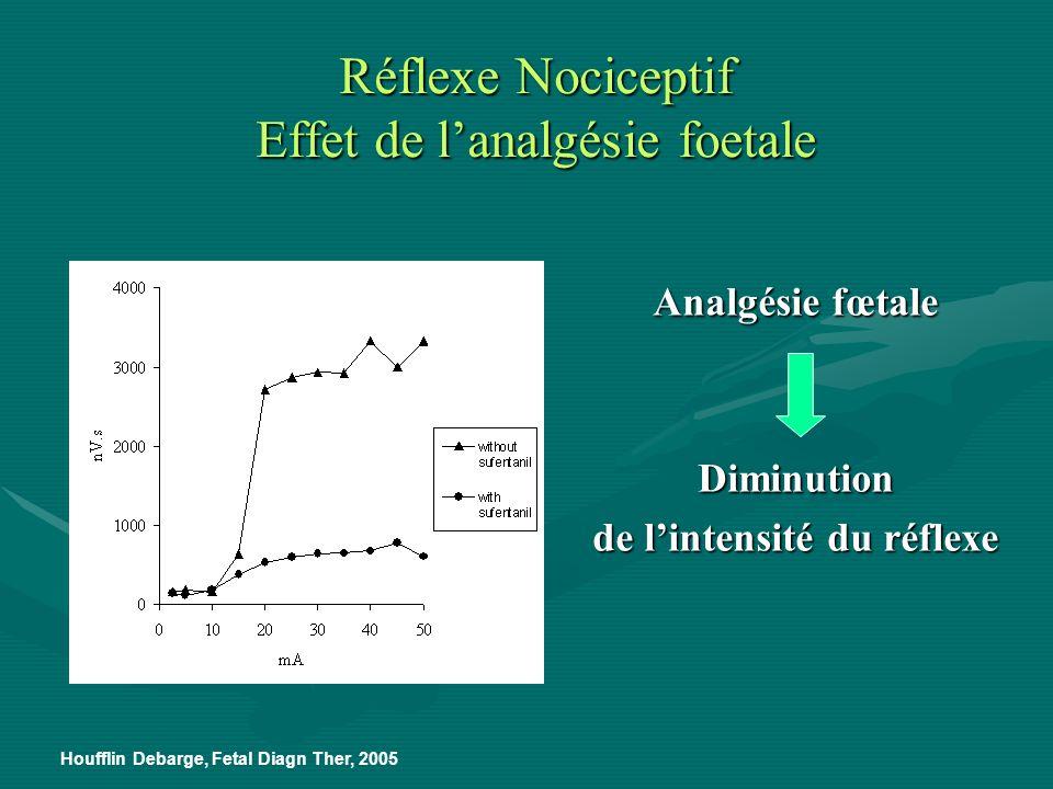 Réflexe Nociceptif Effet de l'analgésie foetale