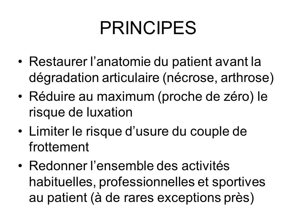 PRINCIPES Restaurer l'anatomie du patient avant la dégradation articulaire (nécrose, arthrose)