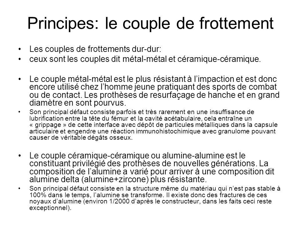 Principes: le couple de frottement