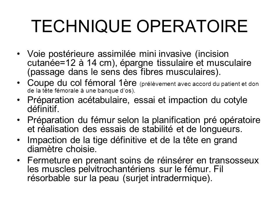 TECHNIQUE OPERATOIRE
