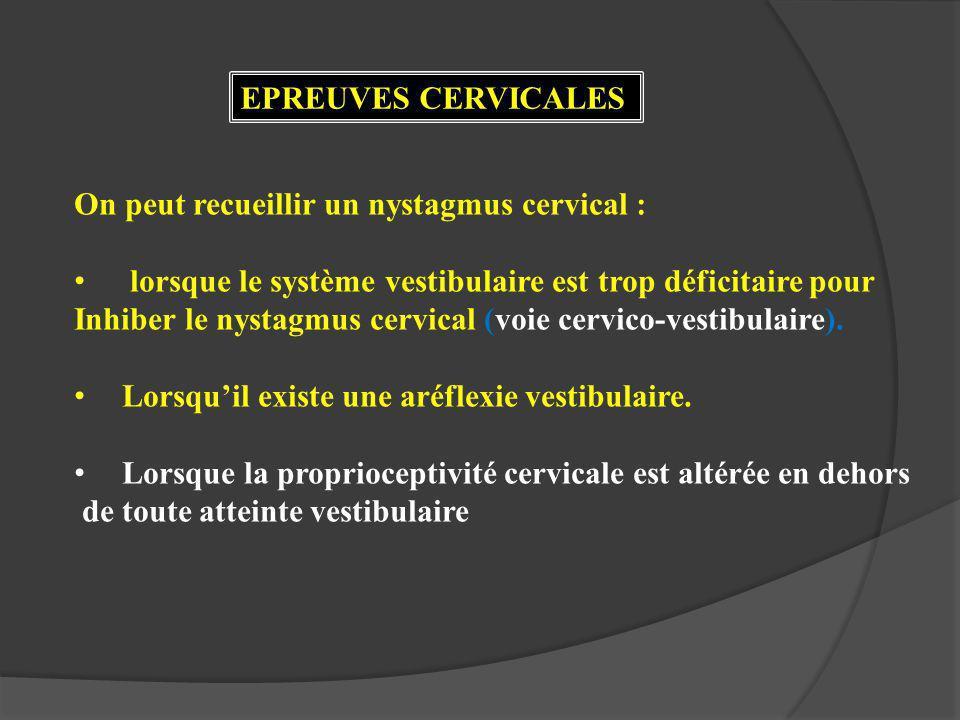 EPREUVES CERVICALES On peut recueillir un nystagmus cervical : lorsque le système vestibulaire est trop déficitaire pour.