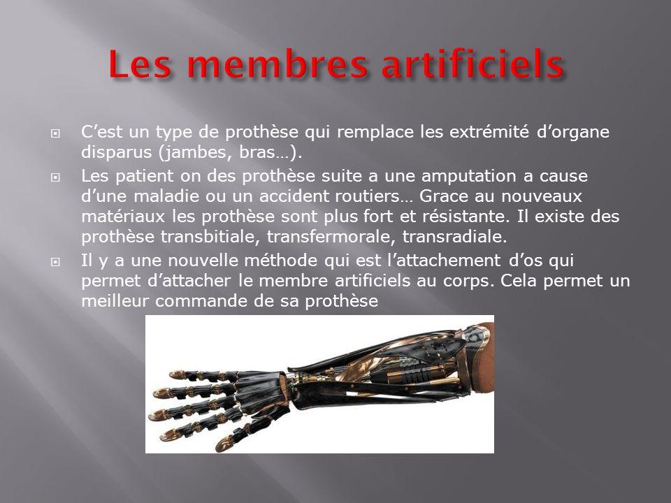 Les membres artificiels