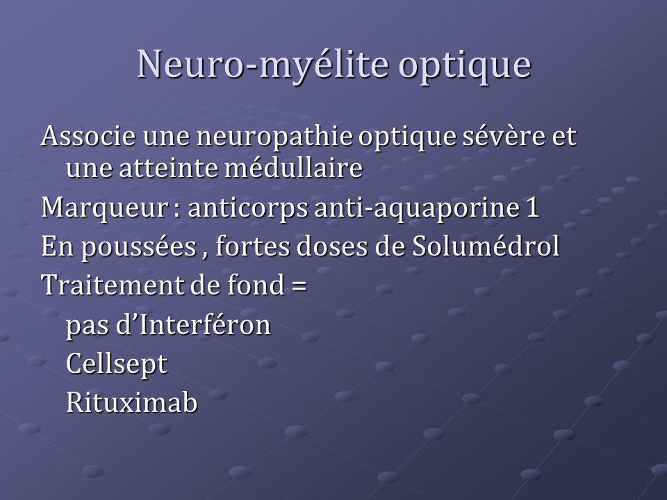 Neuro-myélite optique