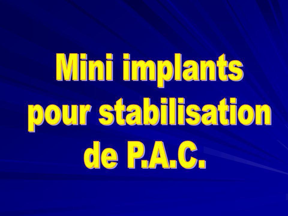 Mini implants pour stabilisation de P.A.C.