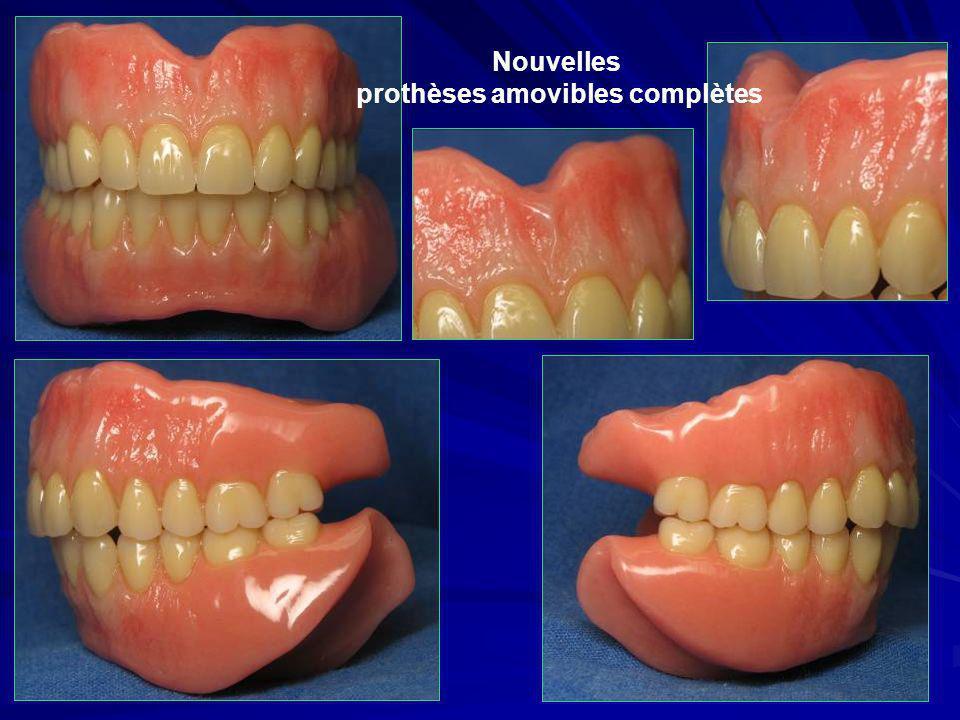 prothèses amovibles complètes