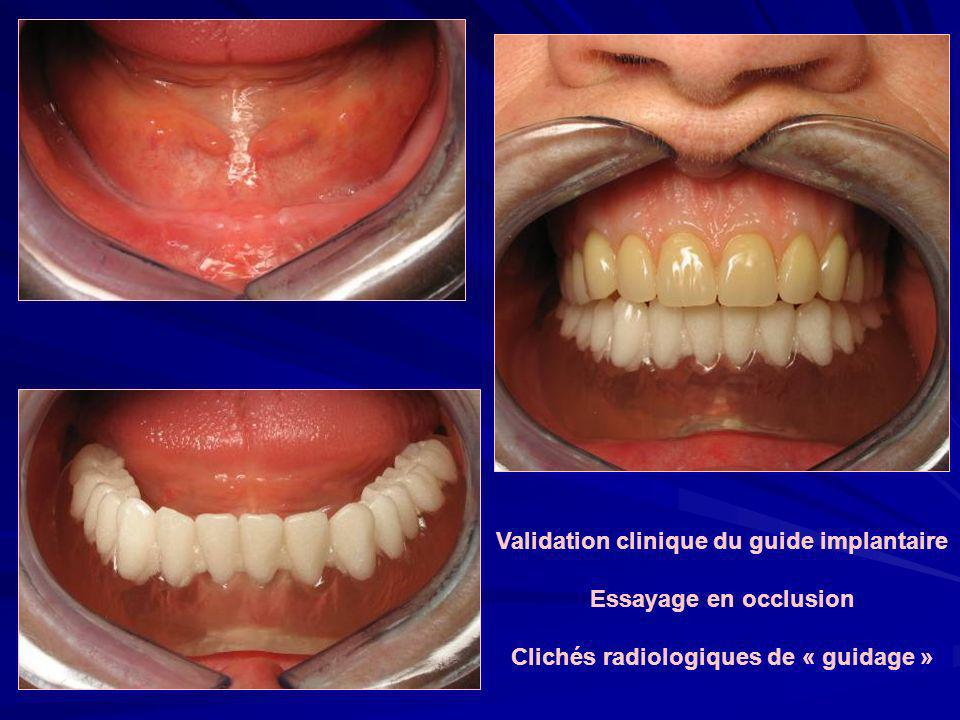 Validation clinique du guide implantaire Essayage en occlusion
