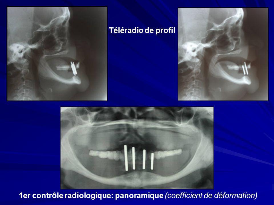 Téléradio de profil 1er contrôle radiologique: panoramique (coefficient de déformation)