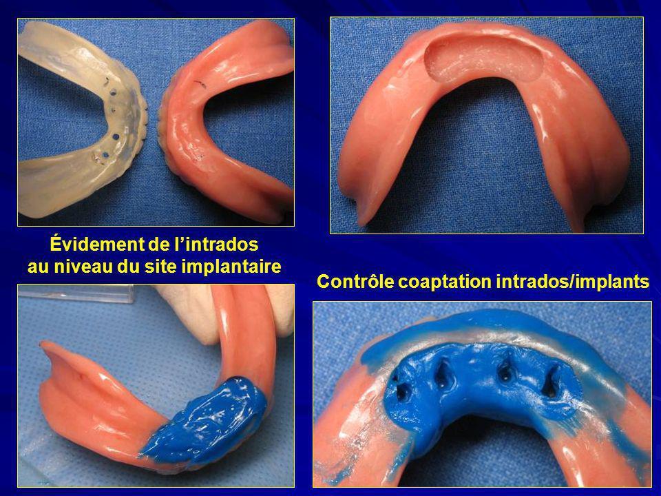 Évidement de l'intrados au niveau du site implantaire