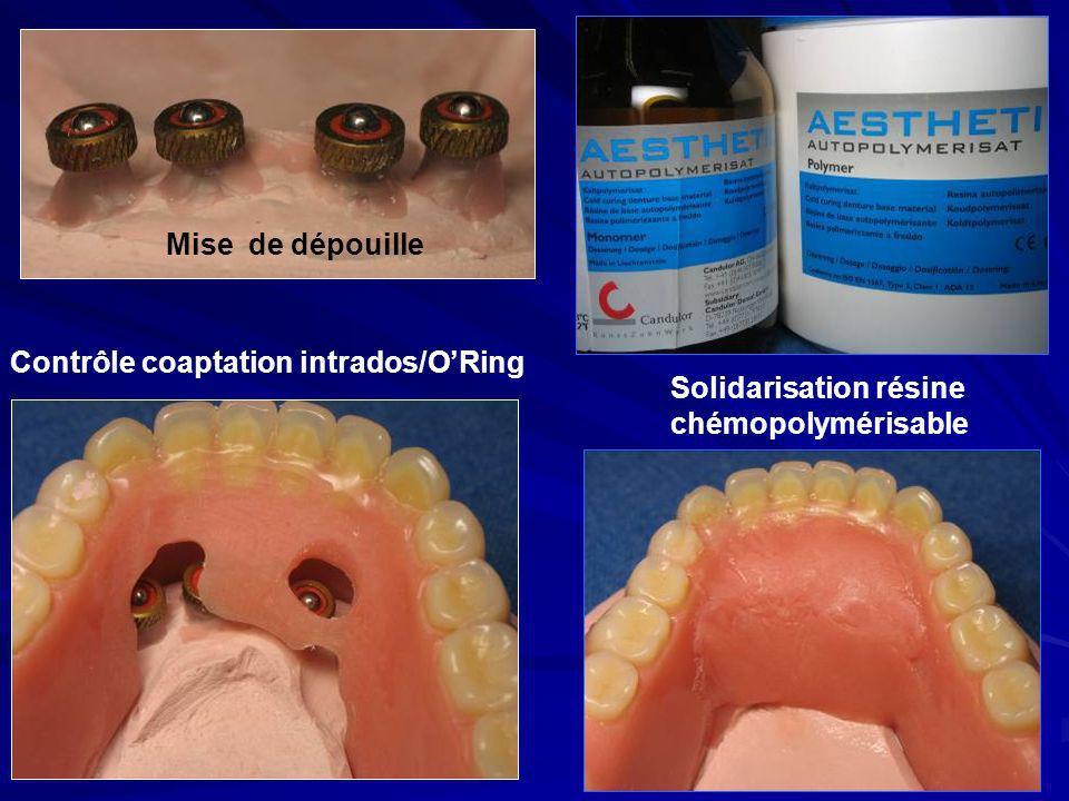 Mise de dépouille Contrôle coaptation intrados/O'Ring Solidarisation résine chémopolymérisable