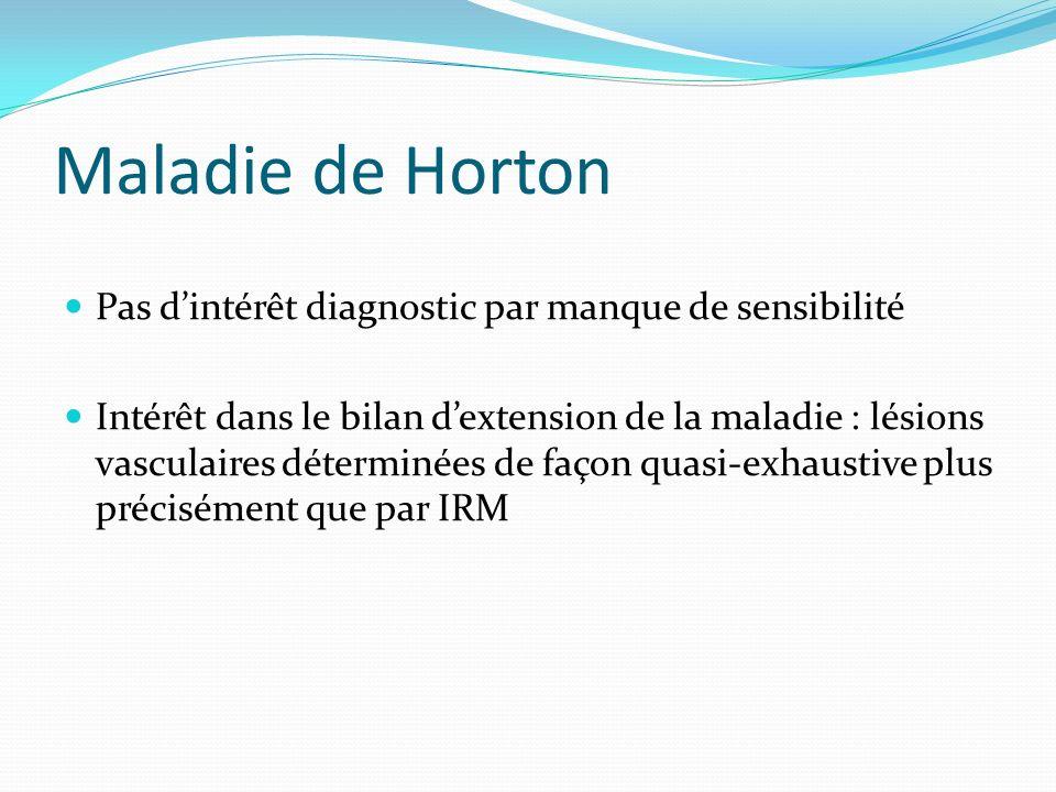 Maladie de Horton Pas d'intérêt diagnostic par manque de sensibilité