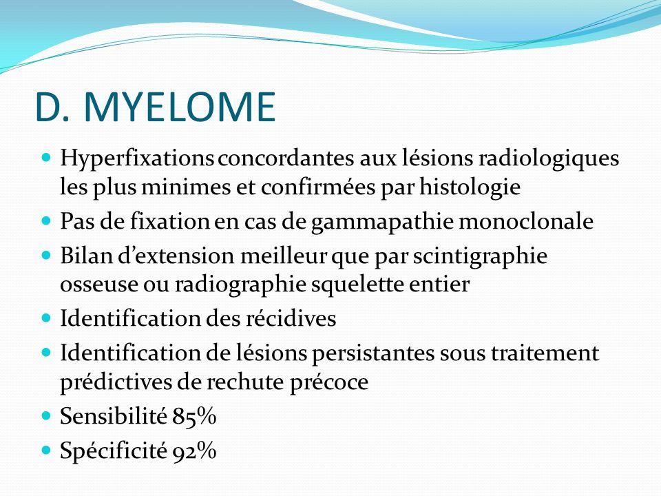 D. MYELOME Hyperfixations concordantes aux lésions radiologiques les plus minimes et confirmées par histologie.