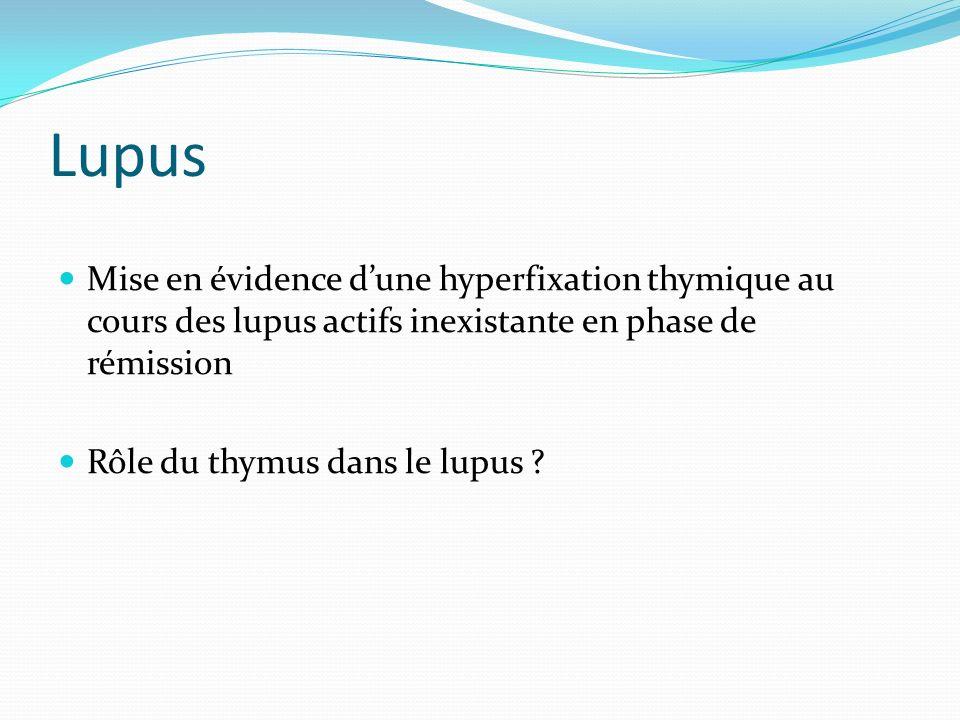 Lupus Mise en évidence d'une hyperfixation thymique au cours des lupus actifs inexistante en phase de rémission.