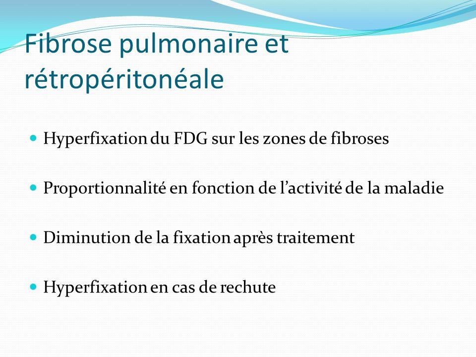Fibrose pulmonaire et rétropéritonéale