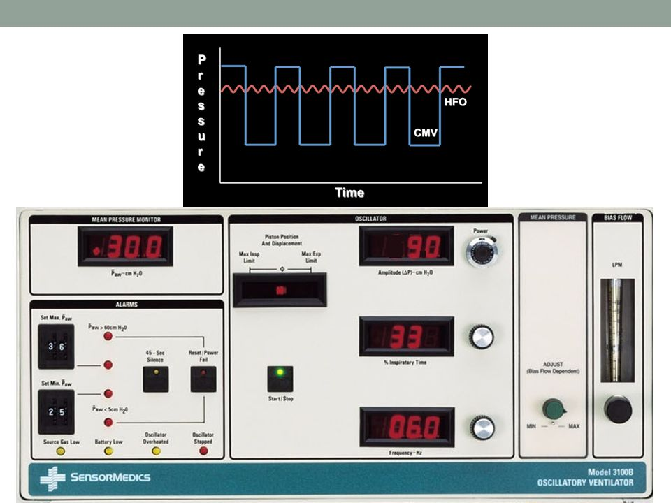 1. Bias Flow: continuous flow through circuit. Helps flush out CO2