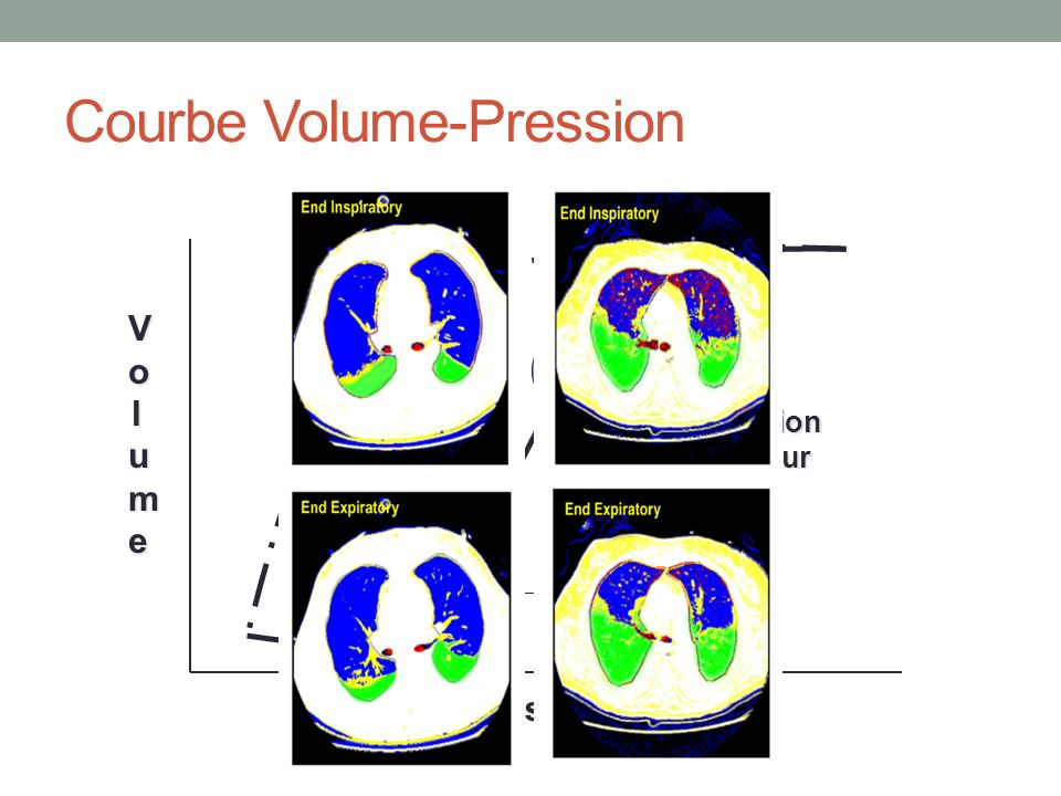 Courbe Volume-Pression