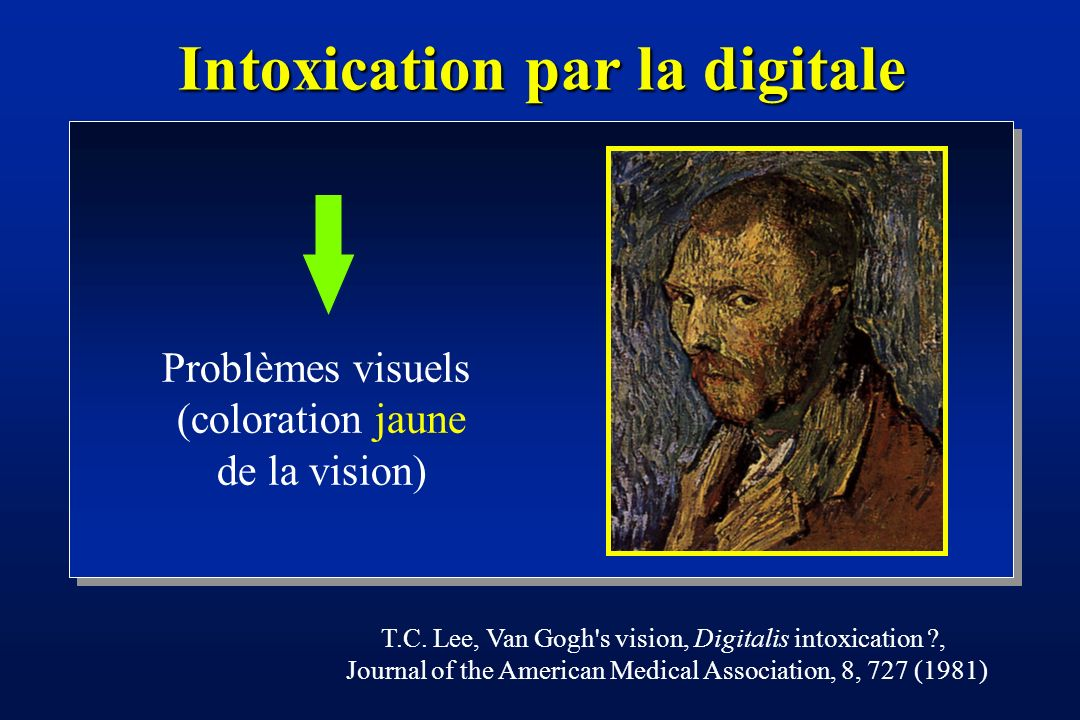 Intoxication par la digitale