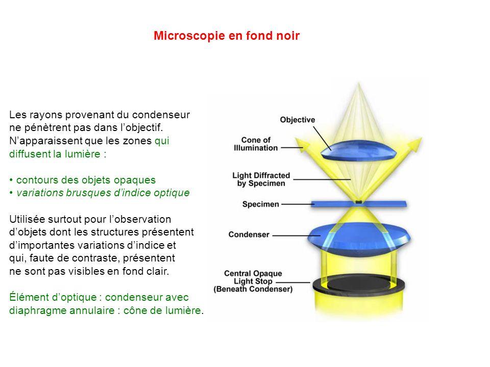 Microscopie en fond noir