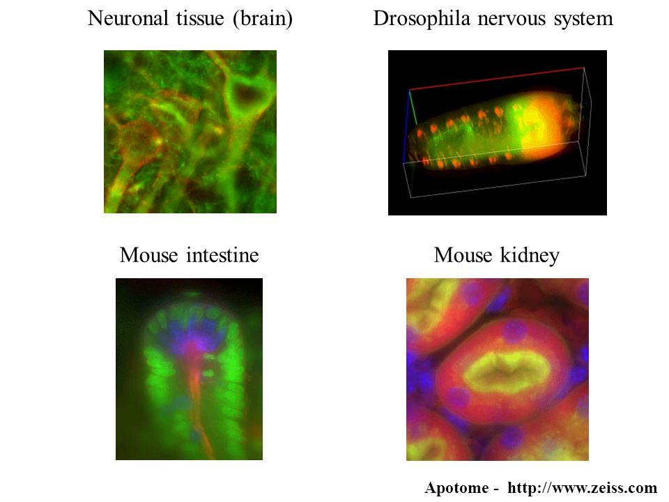 Neuronal tissue (brain) Drosophila nervous system
