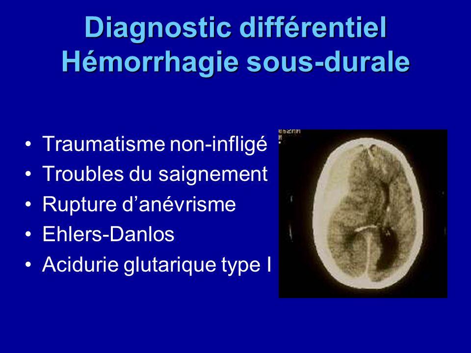 Diagnostic différentiel Hémorrhagie sous-durale