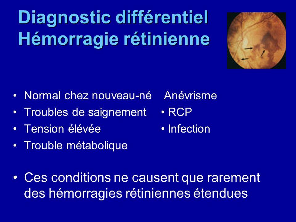 Diagnostic différentiel Hémorragie rétinienne
