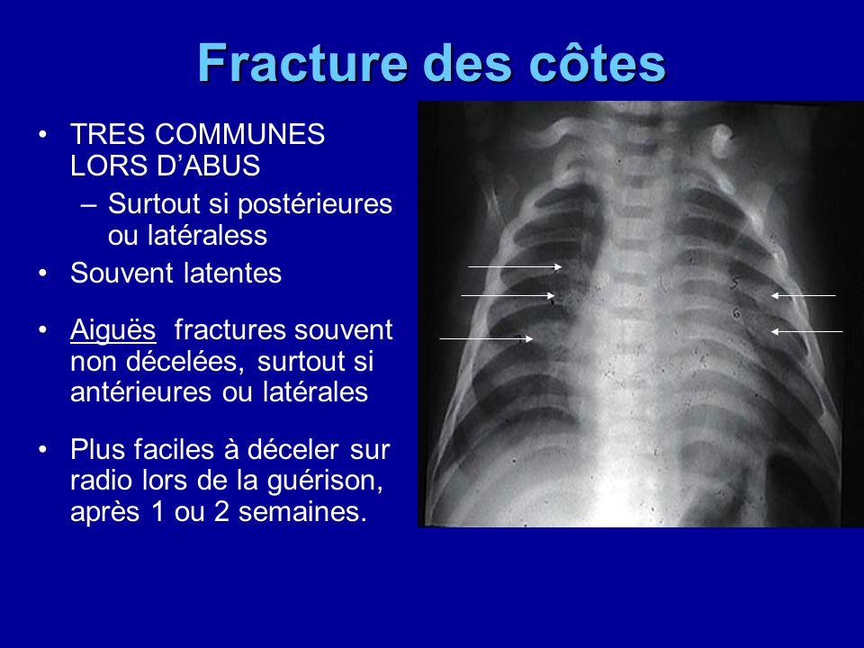 Fracture des côtes TRES COMMUNES LORS D'ABUS