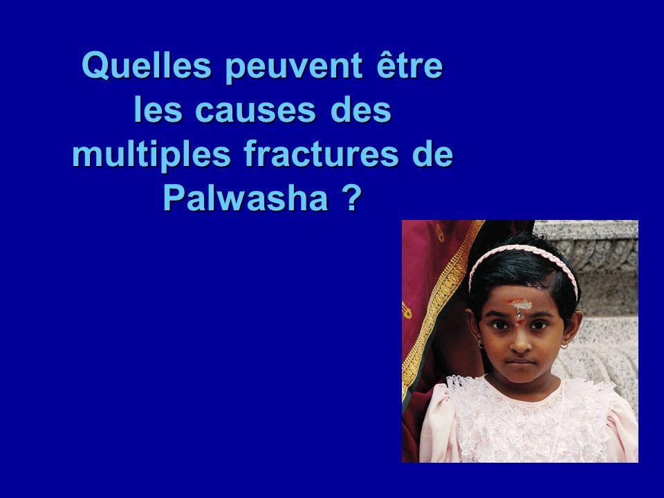 Quelles peuvent être les causes des multiples fractures de Palwasha