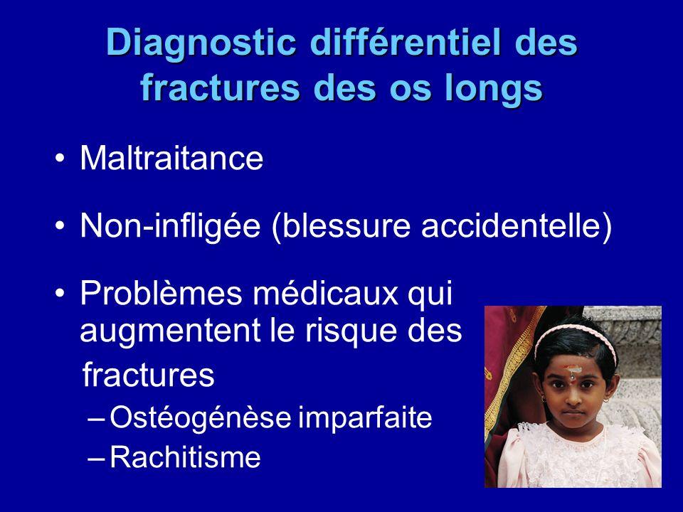 Diagnostic différentiel des fractures des os longs