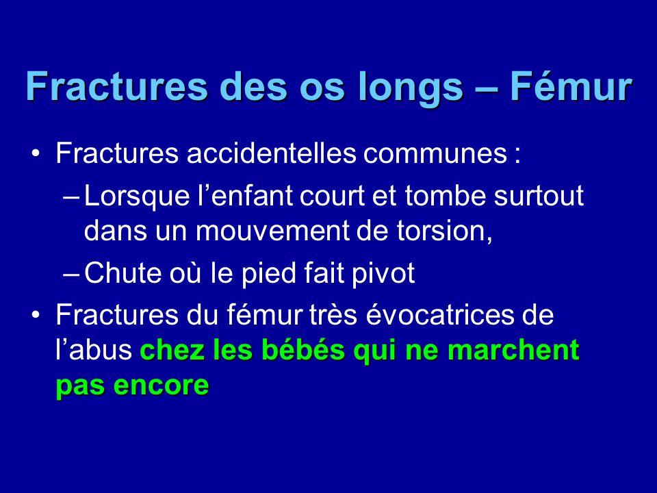 Fractures des os longs – Fémur