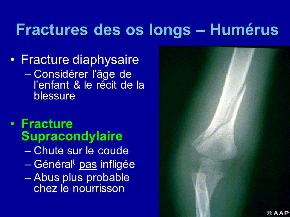 Fractures des os longs – Humérus