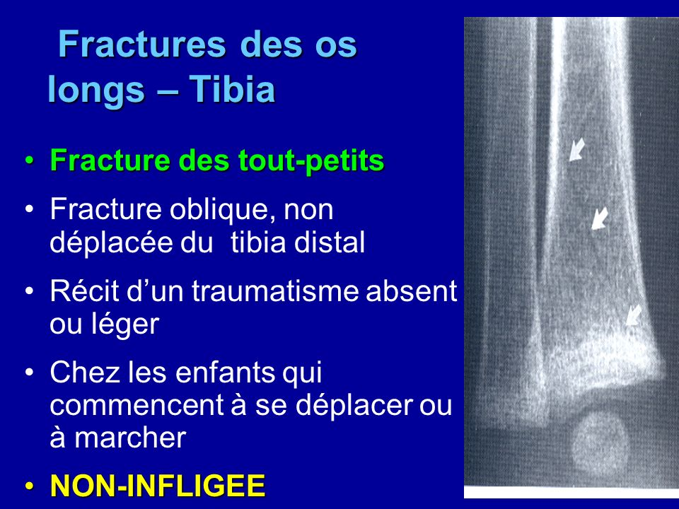 Fractures des os longs – Tibia
